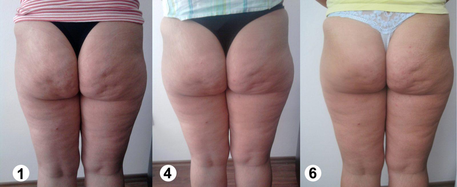 Beine  Slimspec´s Blog von Cellulite Behandlung Zu Hause Photo