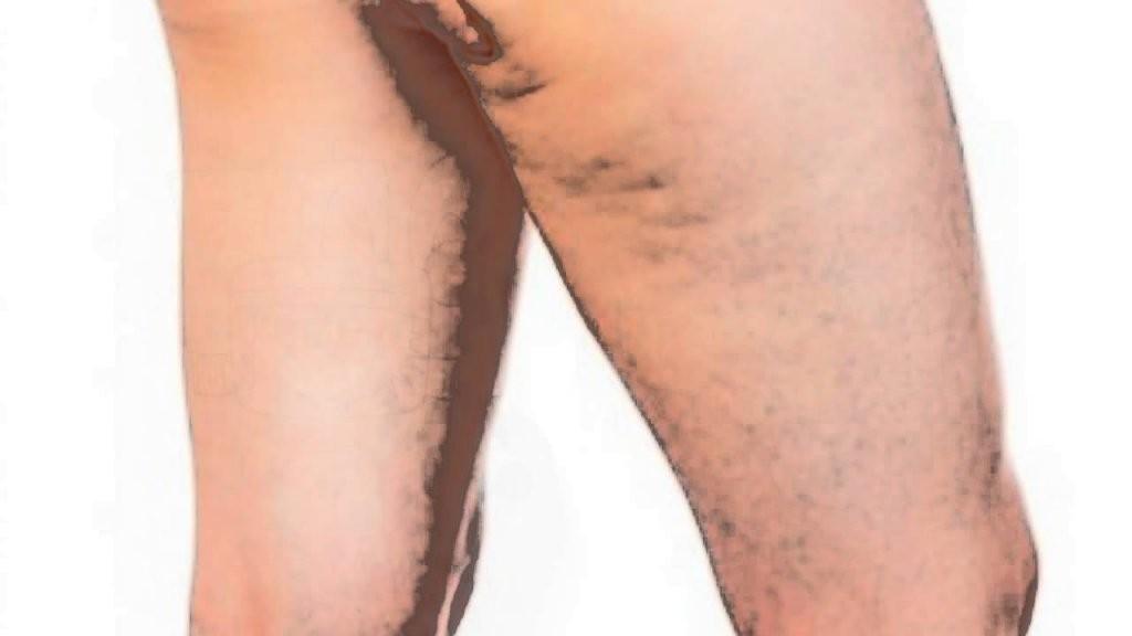 Effektive Cellulite Behandlung Zu Hause 5 Prinzipien Um Cellulite von Cellulite Behandlung Zu Hause Photo