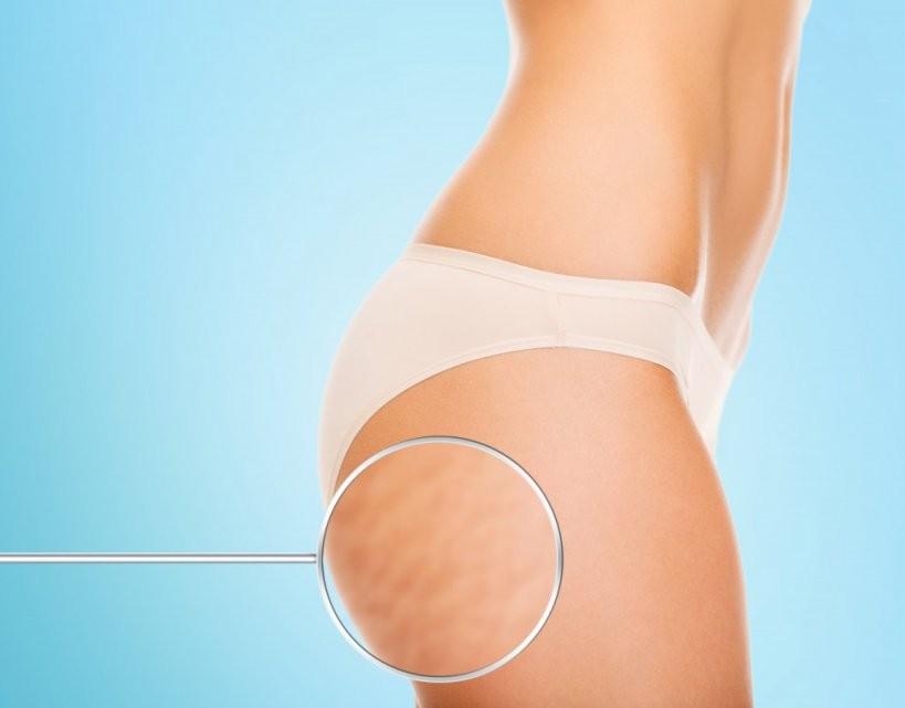 Hausmittel Gegen Cellulite von Cellulite Behandlung Zu Hause Photo