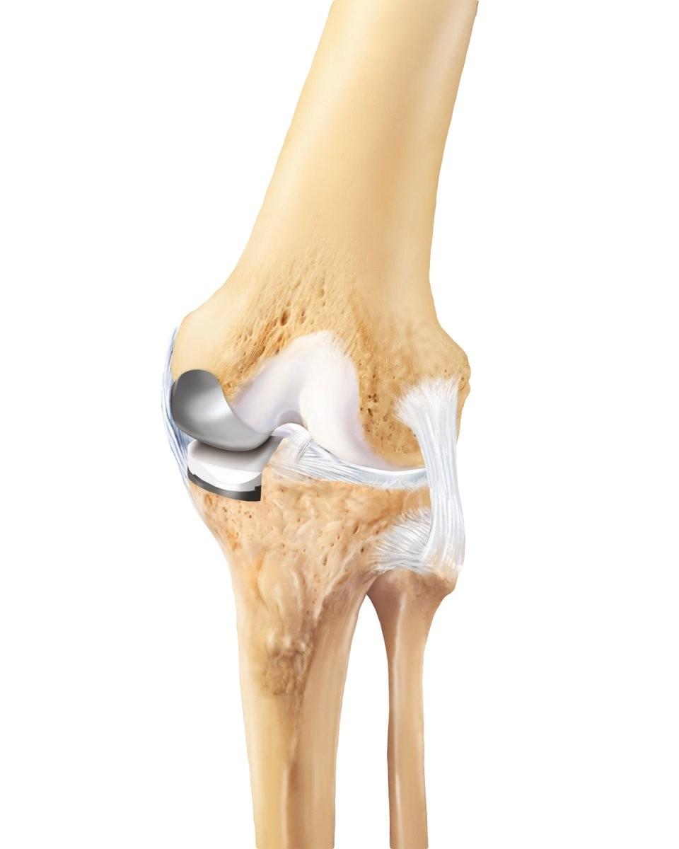 Knieschmerzen  Kniebeschwerden  Praxisklinik 2000 von Knieschmerzen Beim Treppe Runter Gehen Bild
