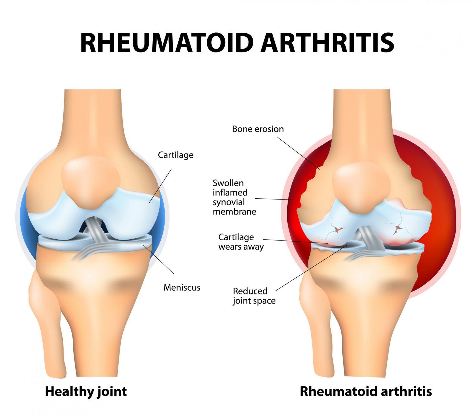 Knieschmerzen  Ursachen Und Therapie von Knieschmerzen Beim Treppe Runter Bild