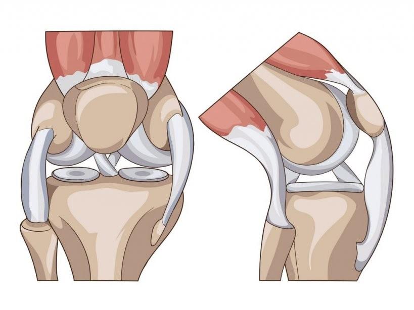 Stechen Im Knie  Ursachen Behandlung Und Selbsthilfe von Knieschmerzen Beim Treppe Runter Gehen Bild