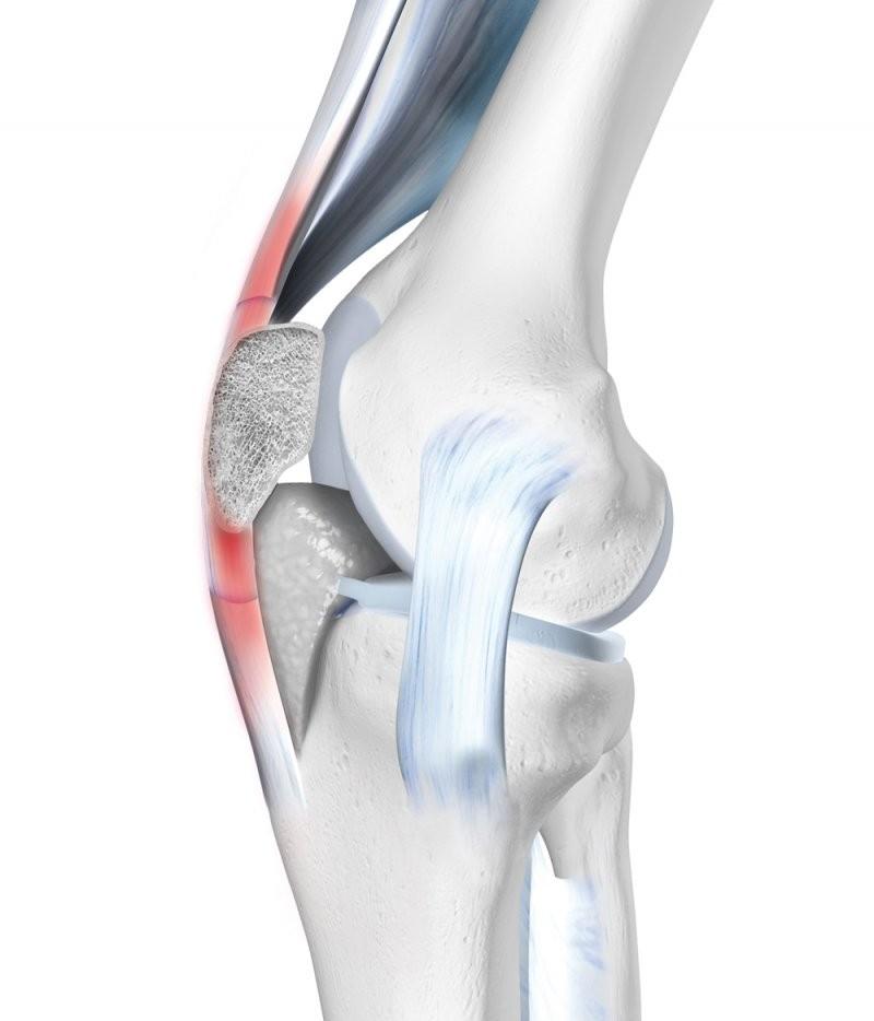 Verursacht Schmerzen Im Kniegelenk Wegen Dem Was Die Gelenke Der von Knieschmerzen Beim Treppen Runtergehen Photo